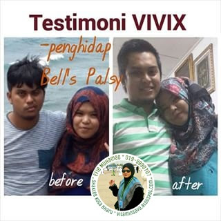Vivix & Bell's Palsy