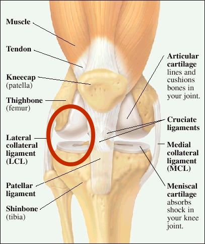 Lateral Collateral Knee Ligament Injury on lcl diagram