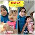 Detox Shaklee : 7 Hari Hilang 5kg ?!