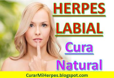 remedios-caseros-para-herpes-labial-tratamiento-natural-fuegos-labios-boca-oral