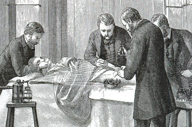 Средство от всех болезней: женское обрезание в Викторианской Англии