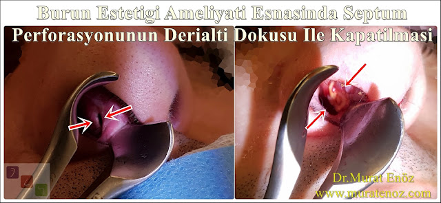 Deri altı dokusu ile septum perforasyonu tamiri - Deri altı dokusu ile septum perforasyonu ameliyatı - Septum perforasyonu tedavisi - Nazal septum perforasyonu operasyonu - Açık teknik septum perforasyonu ameliyatı - Açık teknik septum perforasyonu onarımı - Burun estetiği ile birlikte septum perforasyonu kapatılması - Burun septumunda delik kapatılması - Burun septum perforasyonu ameliyatı - Septum perforation closure in Istanbul - Septum perforation closure with under skin tissue - Closure of nasal septal perforations using under skin tissue - Combining rhinoplasty with septal perforation repair