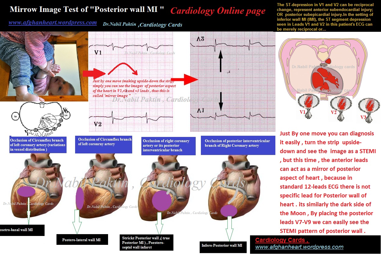 Drbil Paktin S Cardiology Blog