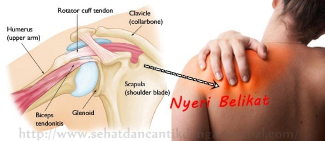 Cara mengobati nyeri lutut sebelah kiri