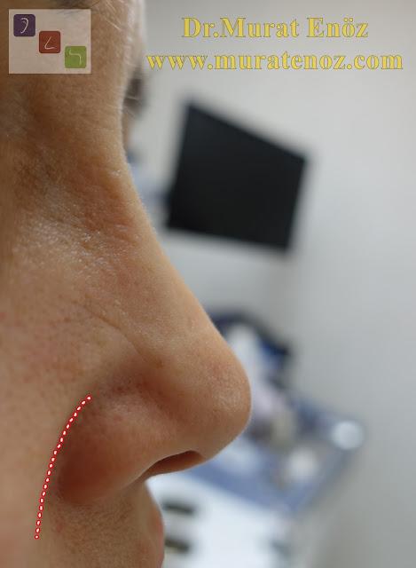 Nazolabial kıvrım - Nasolabial fold - Burun dolgusu - Revizyon burun estetiği sonrası burun dolgusu