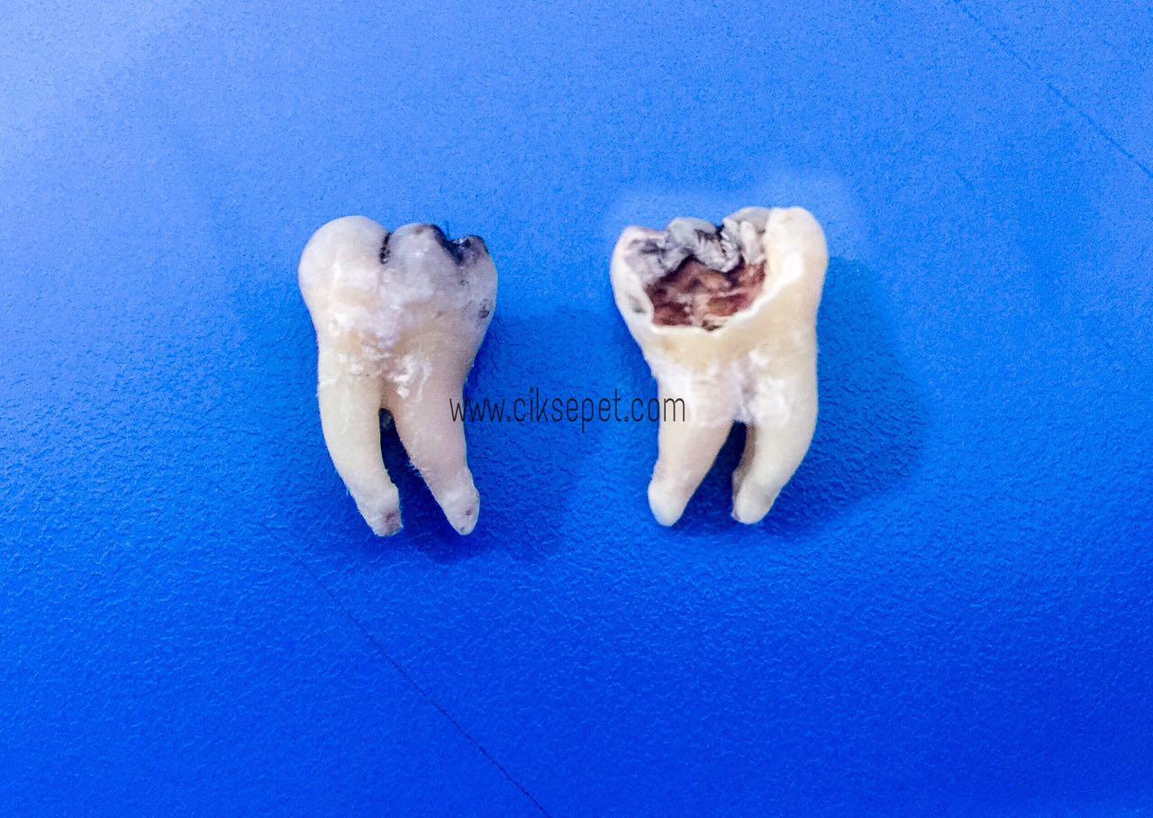 gigi bongsu