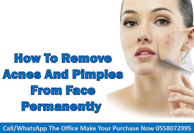 How To Remove Acnes and Pimples From Face Permanently
