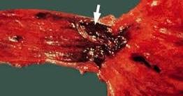 Esophageal Varices Diseases