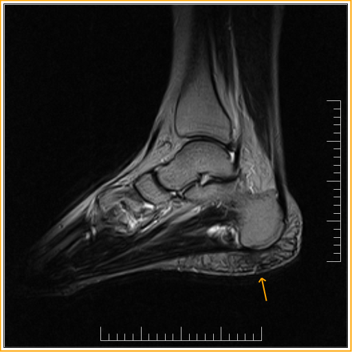 Heel Fat Pad Syndrome - Sumer's Radiology Blog