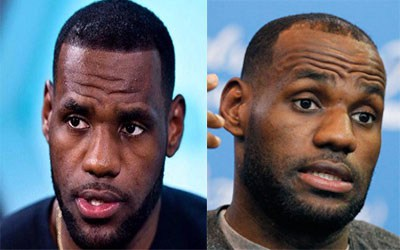lebron james hair transplant - Has LeBron James Had Hair Loss Treatment? The Belgravia Centre