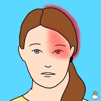 Headache Type 6: Migraine