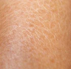 Cara Mengatasi Kulit Kering Bersisik Dan Gatal Pada Kaki , Tangan & Wajah