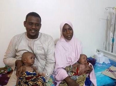 Federal Medical Center, Yola successfully separates conjoined female twins