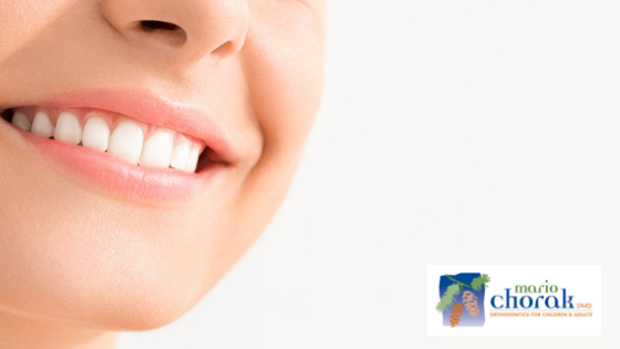 orthodontics mercer island