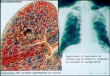 โรคปอดฝุ่นทรายหรือซิลิโคสิส silicosis