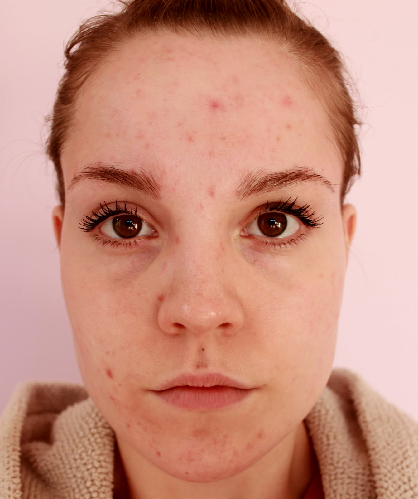Image Result For Tea Tree Oil For Acne Scars On Face
