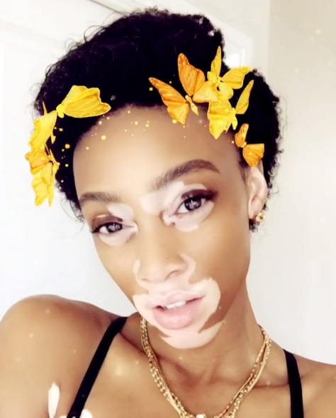 Model Winnie Harlow Shares Natural Hair Journey On Instagram