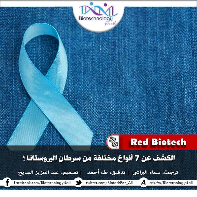 • الكشف عن 7 أنواع مختلفة من سرطان البروستاتا