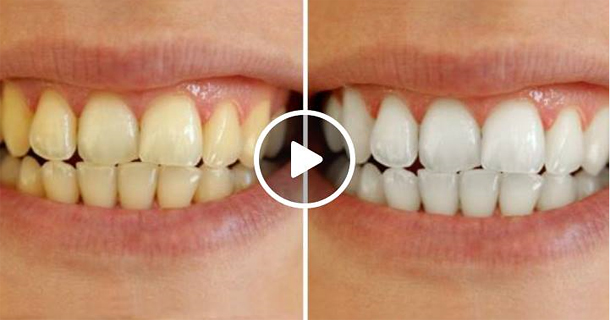 How To Use Ingredients To Lighten Teeth At Home