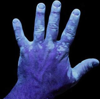 Fotografía bajo luz UV de una mano con vitíligo.