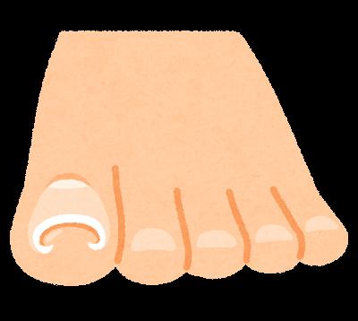 巻爪のイラスト