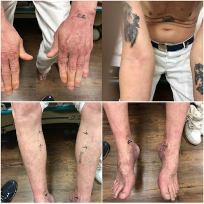 Images entered in court records show Doyle Lee Hamm's veins, and how the veins in his lower extremities are more accessible. (Court records)