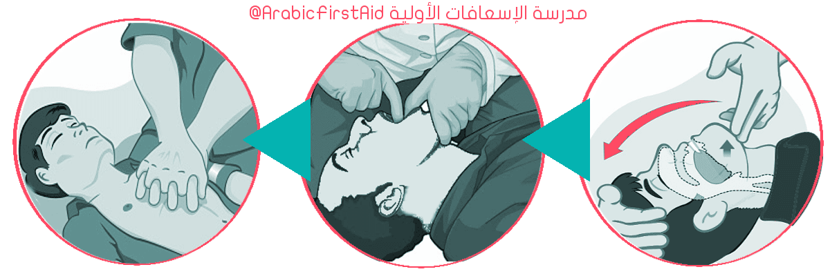 First-aid-choking-unconscious
