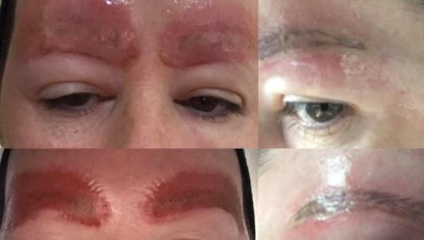 Mujer advierte de las consecuencias de tatuarse las cejas