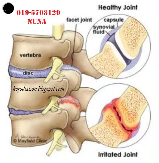 Sakit belakang lutut kiri