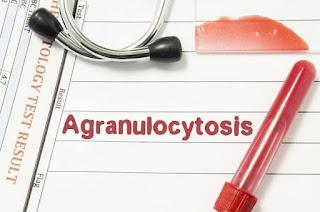 agranulositosis-www.healthnote25.com