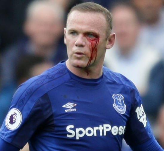 Wayne Rooney suffers nasty eye injury as he is forced to leave field with blood pouring from his face