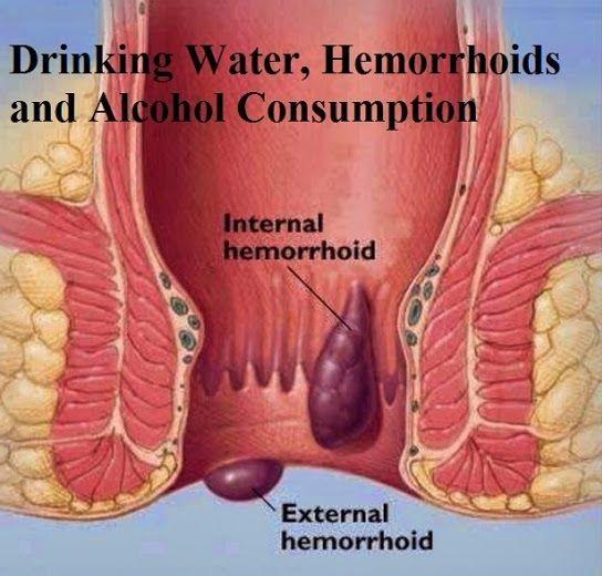 obat alami wasir eksternal