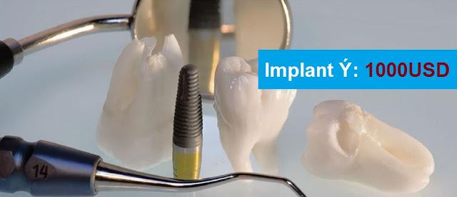 cay-ghep-rang-implant-nha-khoa-o-dau-tot