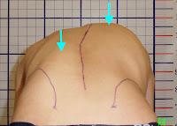 脊椎側彎, 脊椎側彎矯正, 脊椎側彎治療, 脊椎側彎矯正運動, schroth運動, schroth脊椎側彎