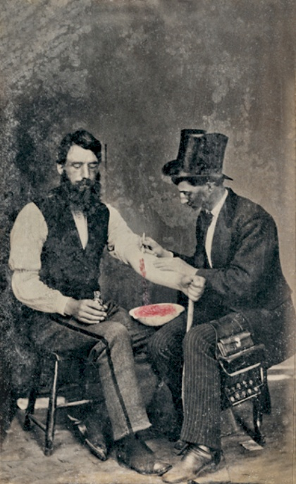 A nineteenth-century physician practising bloodletting