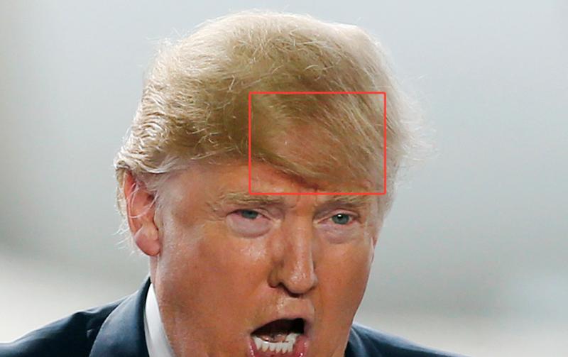 BILLIONAIRE GAMBLER Donald Trump New Hair Donald Trump