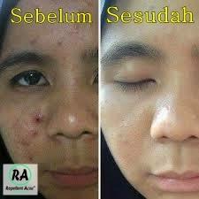 testimoni-obat-jerawat-ampuh-dalam-semalam-repellent-acne-RA