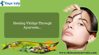 https://skincareayurveda.com/ayurveda-vitiligo-treatments-india/