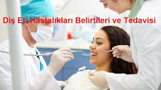Diş Eti Hastalıkları Belirtileri ve Tedavisi