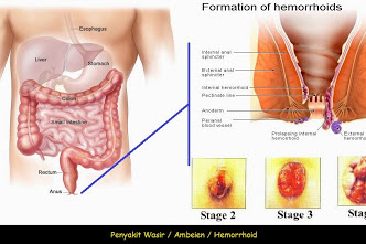 Apa Perbedaan Penyakit Ambeien, Wasir dan Hemoroid