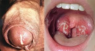 Obat alami penyakit sipilis pada wanita,