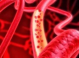 Kadar Hb / Hemoglobin Rendah Dengan Kolesterol Tinggi