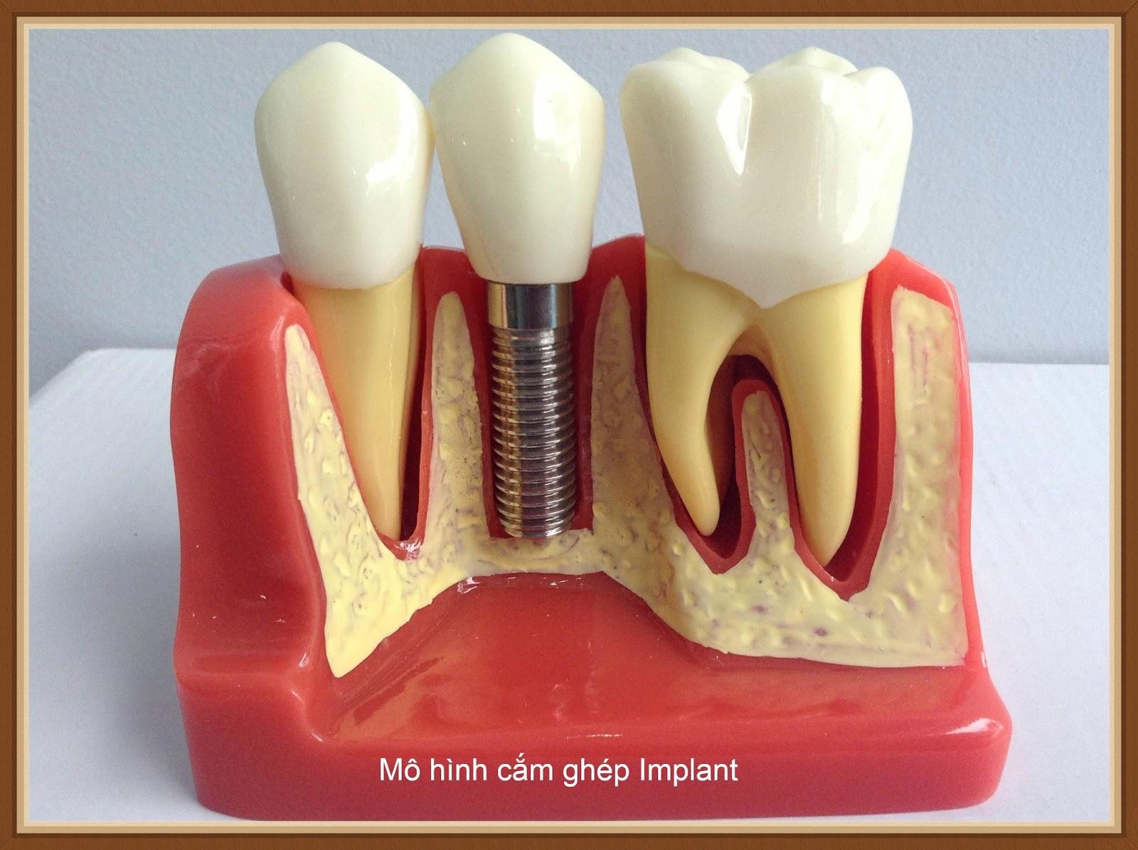 Kết quả hình ảnh cho Trồng implant cho răng cửa thì sẽ như thế nào?