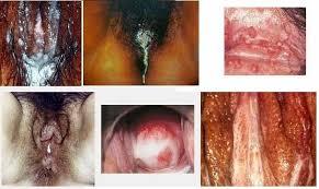 Image Obat penyakit dalam kemain bernanah pada perempuan