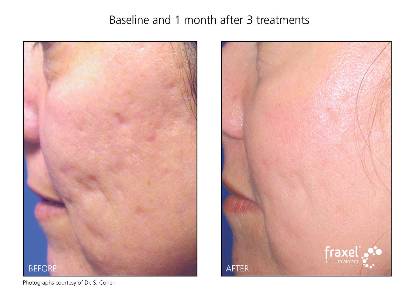 Acne Treatment Sydney Acne Scar Treatment With Fraxel