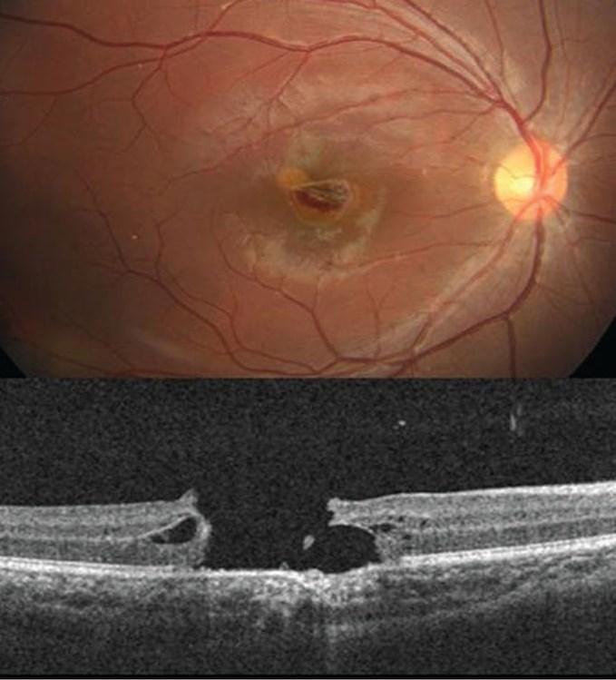 Innovations in Macular Hole Repair - Eyedolatry