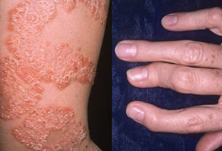 https://skincareayurveda.com/what-is-psoriasis-arthritis/