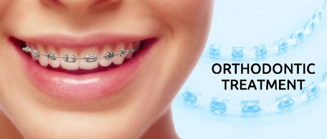 The Common Oral Problem Orthodontic Treatment Can Solve