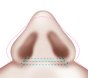 짱이뻐! - Korean Rhinoplasty - Nostril Reduction