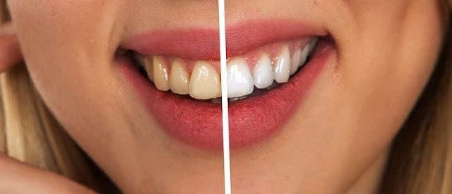 dentes amarelos e dentes brancos